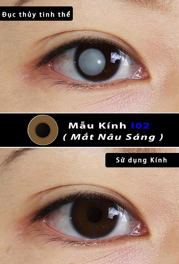 mắt đục thủy tinh thể